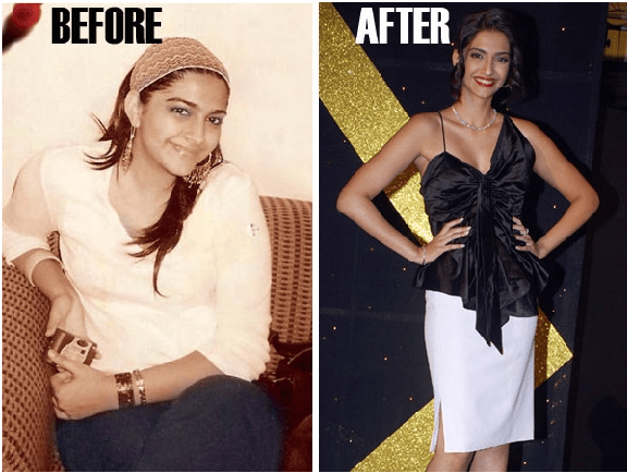 Sonam Kapoor Fat To Fit Actress