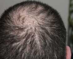 Hair Loss Cause