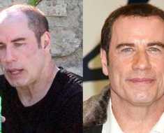 balding-treatment