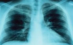 Tumori, quello al polmone seconda causa di morte nelle donne toscane