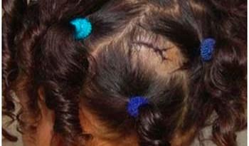 Criança-sofreu-ferimento-na-cabeça