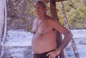 Raimundo Rocha Galúcio, de 63 anos, reagiu e foi baleado na cabeça (Foto: Arquivo Pessoal)