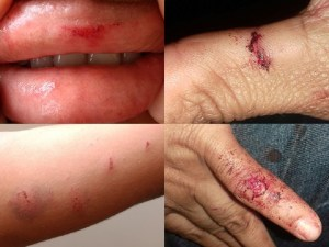 machucados