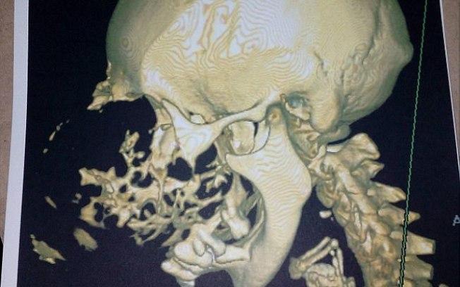 Ao realizar exames de imagem, foi possível constatar que diversos ossos da face da idosa foram quebrados com o crescimento do tumor Reprodução/Twitter