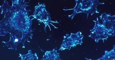 celulas-cancerosas