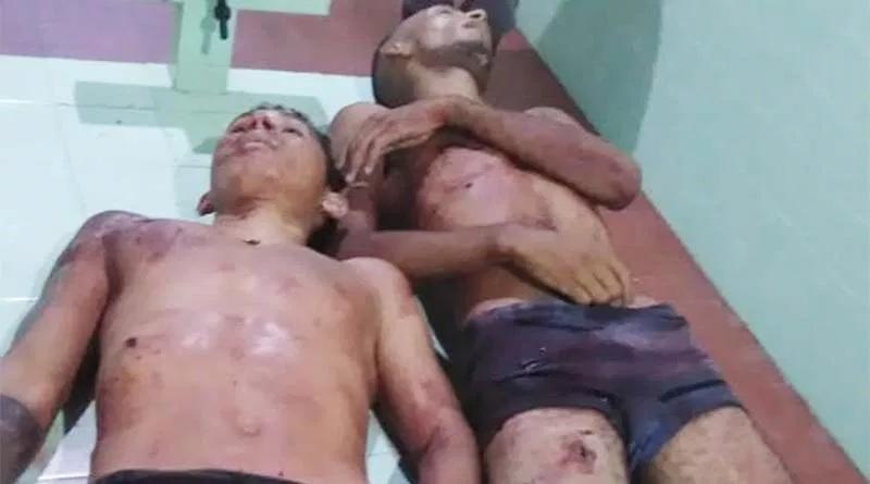 Imagens Forte- Bandidos morrem após praticarem feminicídio em oriximiná