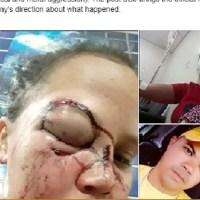 Mulher é agredida a socos pelo ex-marido em Altamira e fica com rosto deformado