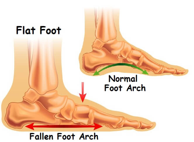 Foot Arch Pain On The Bottom Of The Foot