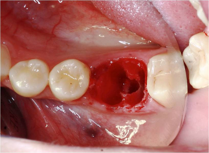 Immediate implant placement in the molar region with an alternative