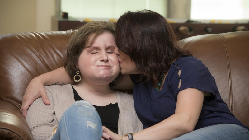 Face transplant gives second chance to woman who lost her own in a suicide bid when 18 – MOVING ...