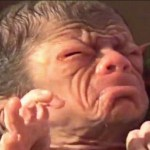 Newborn baby resembles an old man