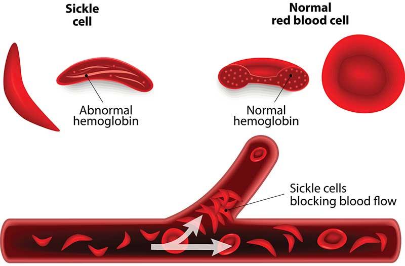 Sickle Cell Disease Symptoms