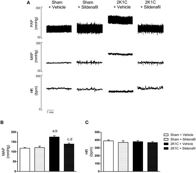 Frontiers Inhibition of PDE5 Restores Depressed Baroreflex