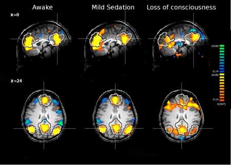 Higher Order Consciousness Edelman
