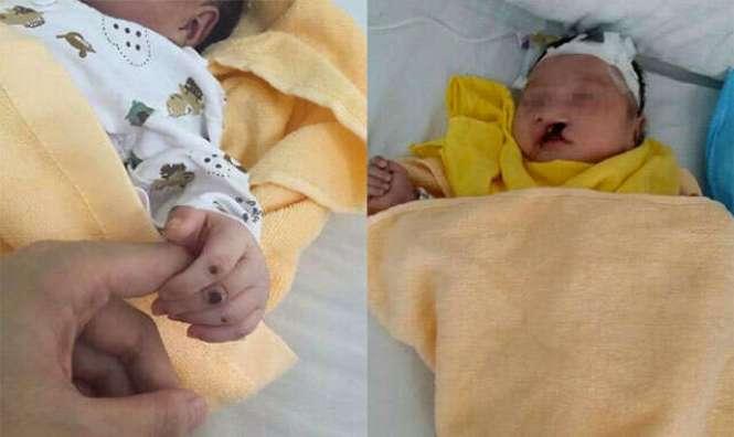 Bebê é enterrado vivo e após calvário milagrosamente recebe alta de hospital