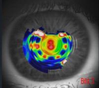 GAIRING Die Augenoptiker - DNEye