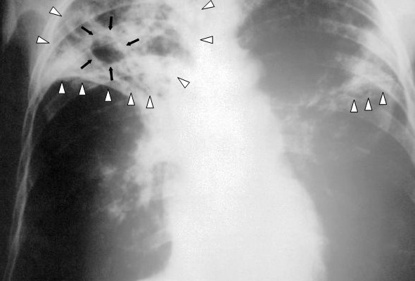 Tuberculosis-x-ray-1.jpg