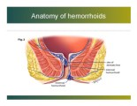 What Does Hemorrhoids Look Like
