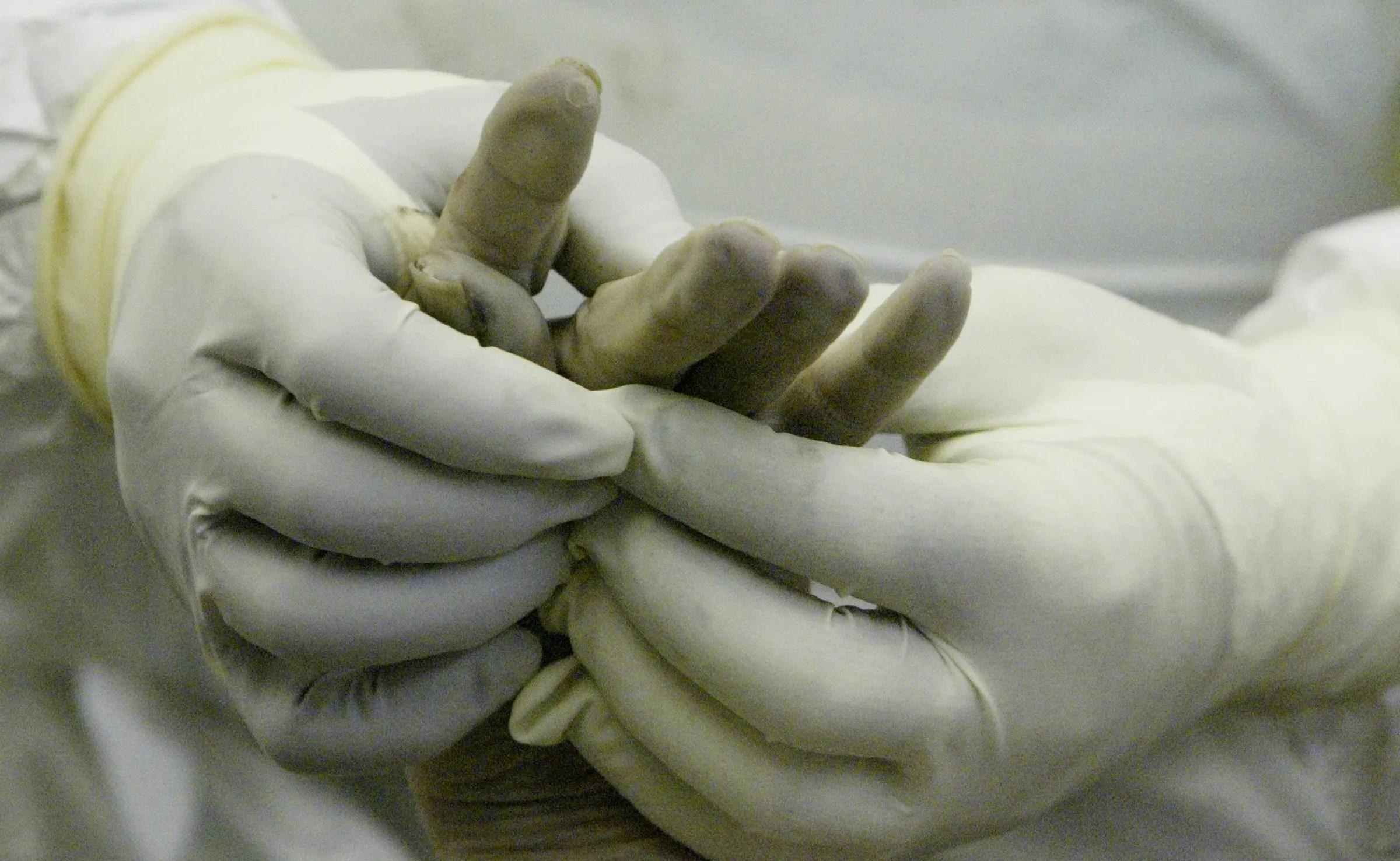 Iowa Medical Examiner\u0027s Office could lose accreditation - medical examiner job description