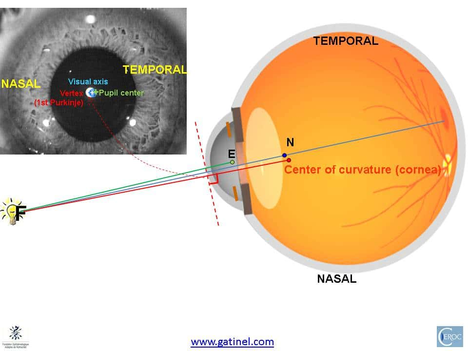 Centering corneal based refractive surgery - Docteur Damien Gatinel