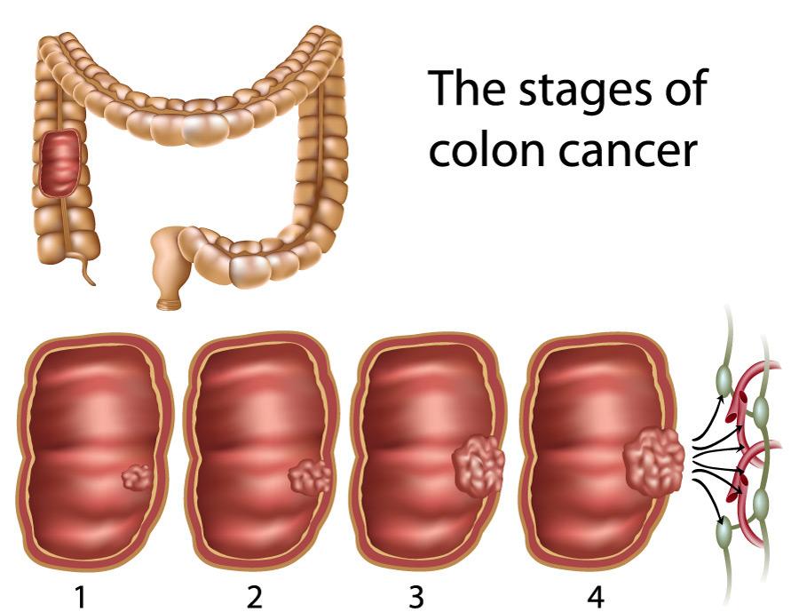 Prevention of Colon Polyps and Cancer Jackson Siegelbaum