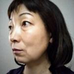 目元の細かな皺や瞼の腫れぼったさ、頬のたるみが軽減したみどり様