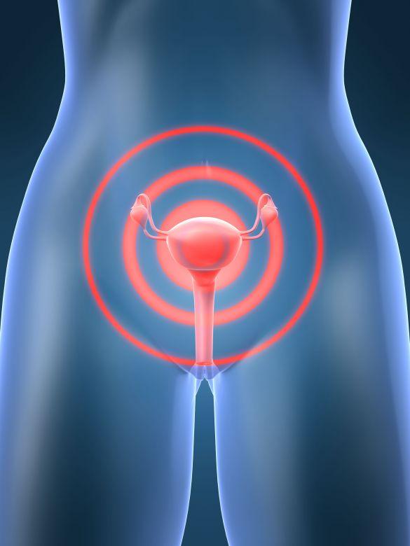 histerectomia 1