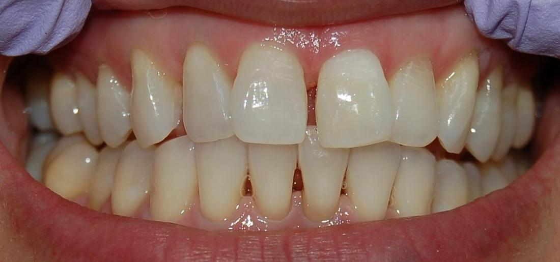 Gladnick Family  Cosmetic Dentistry\u0027s Smile Gallery Internal