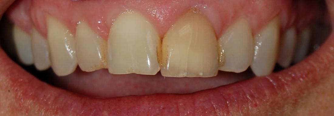 Gladnick Family  Cosmetic Dentistry\u0027s Smile Gallery Internal