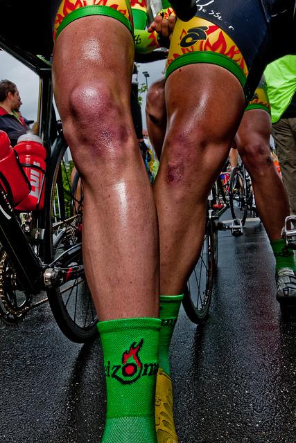 Warum rasieren sich Radsportler die Beine?