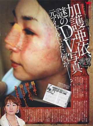 加護亜衣 過去のDV被害