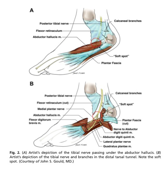 Foot Pain Due to A Nerve Entrapment - Gray Chiropractic St
