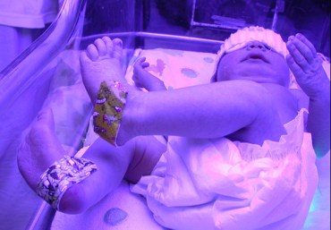 "Mozart, A New Natural ""Drug"" To Help Preemies Gain Weight?"