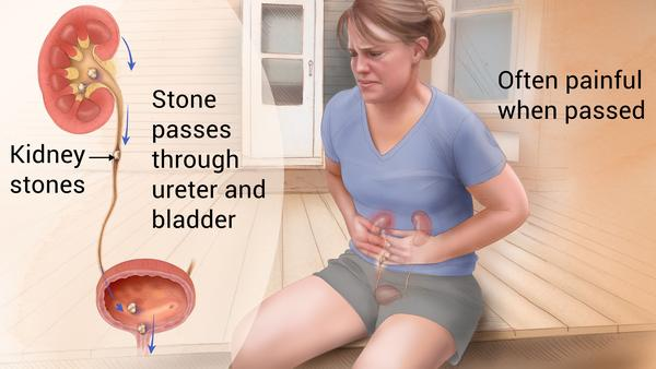Renal Calculi Kidney Stone Homeopathy Treatment Gupta Homoeo Clinic Jaipur