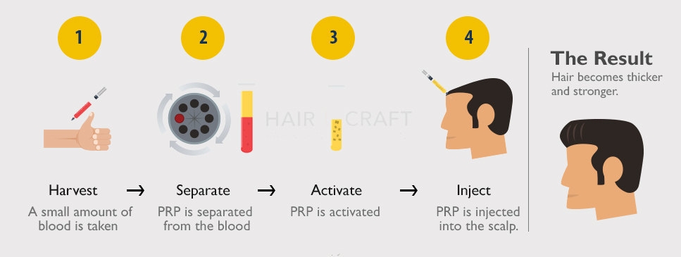 PRP Treatment Hair Loss Treatment Thin Hair Treatment Hair