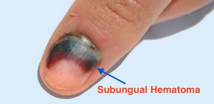 Nail Bed Injuries