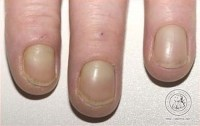 Diabetes and fingernails - Awesome Nail