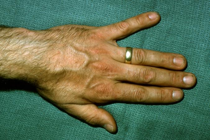 Wartenberg\u0027s Sign Hand Surgery Source
