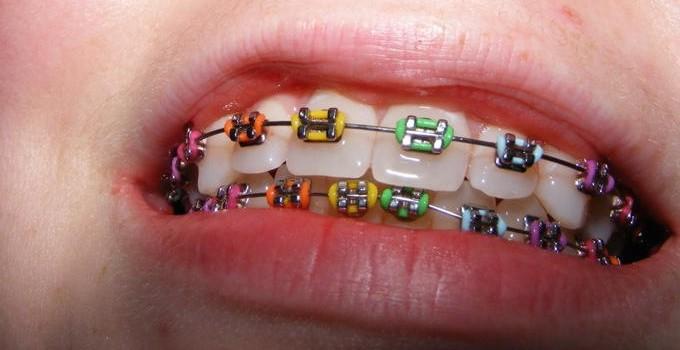 Appareil-Dentaire-couleur-élastique