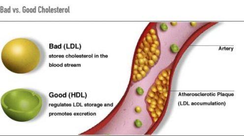 All About Cholesterol Hamilton Cardiology Associates