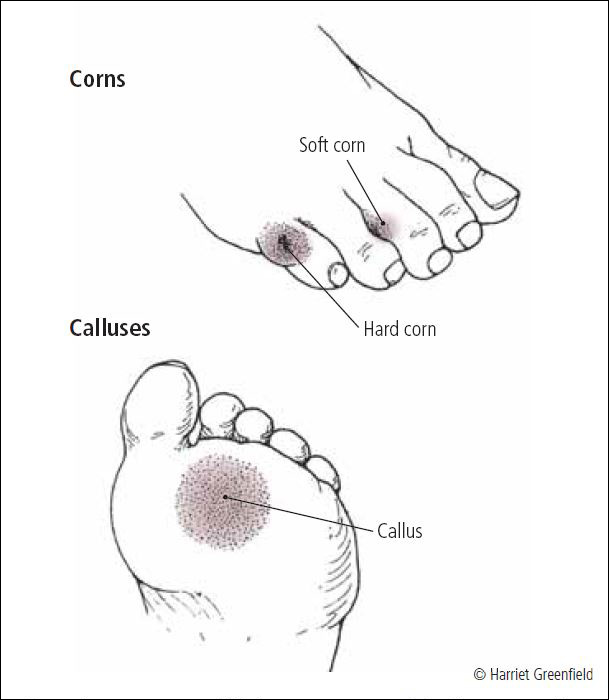 Calluses and corns - Harvard Health