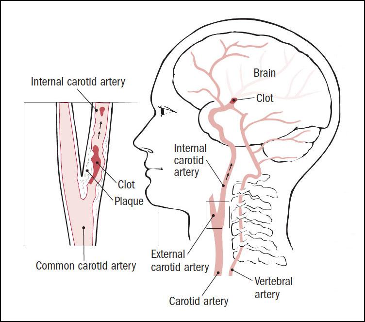 Carotid artery disease - Harvard Health