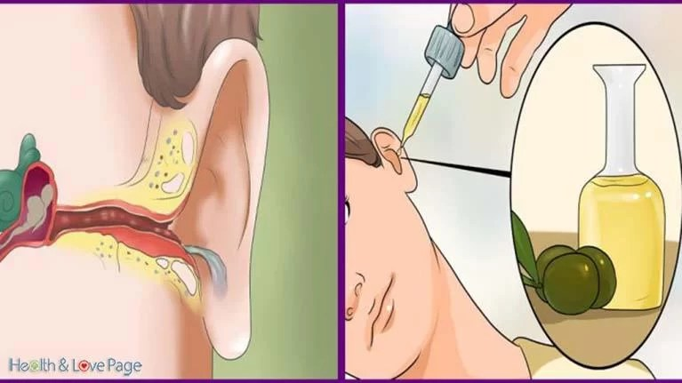 how-to-get-rid-of-painful-earaches-and-ear-infections-naturally