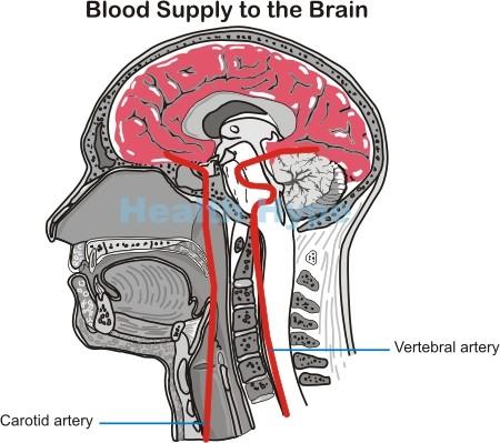 Stroke (CVA) \u2013 Ischemic, Hemorrhagic Types and Mini Strokes