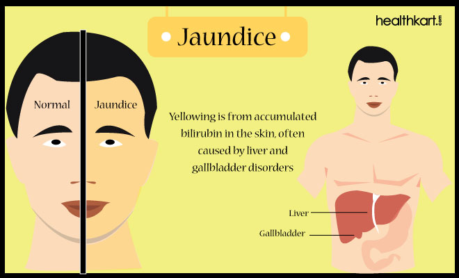 Jaundice Assessment Pinterest - sample health assessment
