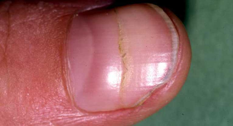 Why Is My Wallpaper Falling Off Fungal Nail Infection Overview Causes Amp Treatments