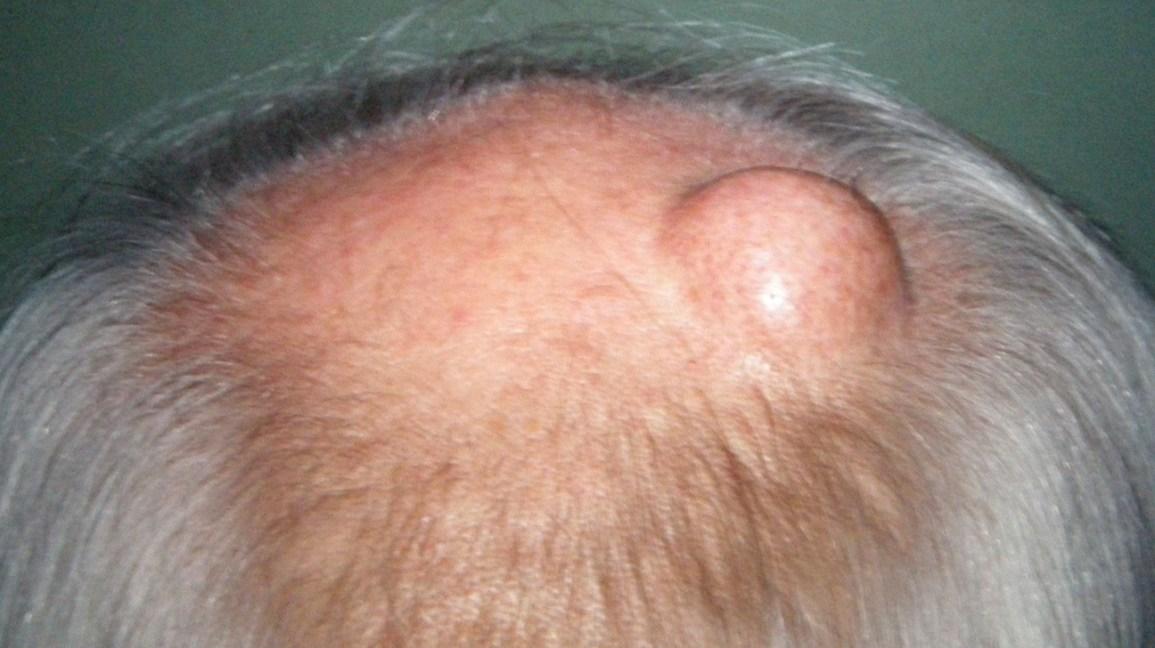 Les bosses de la peau surélevées : Images, types, causes et ...