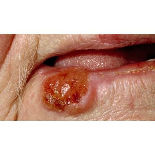 Medium Crop Of Black Spots On Tongue