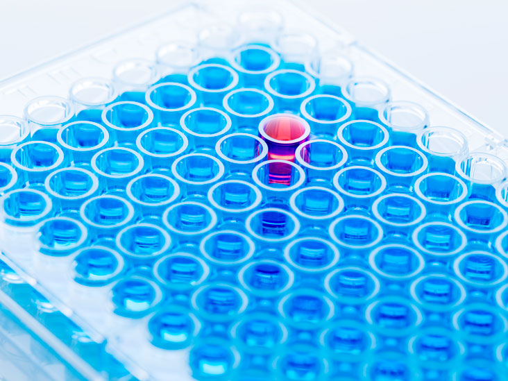 Luteinizing Hormone (LH) Blood Test Procedure and Results