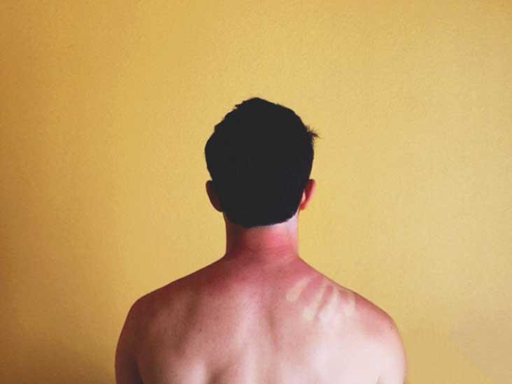 How Long Does a Sunburn Last?